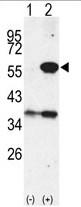 AP14036PU-N - Cytosol aminopeptidase