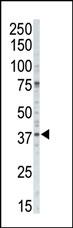 AP14042PU-N - CSNK1A1