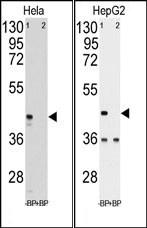 AP13821PU-N - Phosphoglycerate kinase 1 (PGK1)