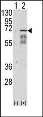 AP13706PU-N - Activin receptor type 1 / ACRV1