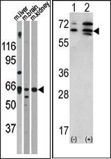 AP13712PU-N - Activin receptor type 2A / ACVR2A