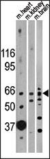 AP13714PU-N - Activin receptor type 2B / ACVR2B
