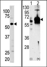 AP13761PU-N - Guanylate cyclase soluble GUCY1A3