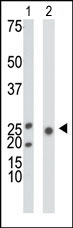 AP13633PU-N - Ketohexokinase