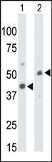 AP13637PU-N - CKMT