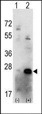 AP13647PU-N - Casein kinase II beta