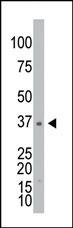 AP13661PU-N - Galactokinase 1