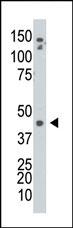 AP13679PU-N - Adenosine kinase