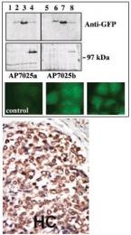 AP13556PU-N - PRKD3