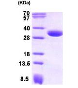 AR09192PU-L - Carbonyl reductase 1