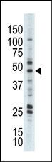 AP13564PU-N - AKT2 / PKB beta