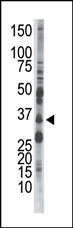 AP13598PU-N - AMPK beta-2 chain / PRKAB2