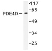 AP06558PU-N - PDE4D