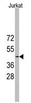 AP11367PU-N - YBX2