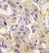 AP11372PU-N - Cadherin-6