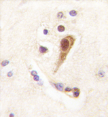 AP11386PU-N - LHX6