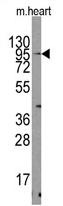 AP11388PU-N - TRPV3