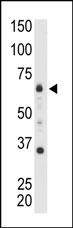 AP13511PU-N - MTMR8