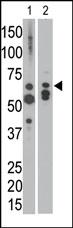 AP13513PU-N - Myotubularin / MTM1