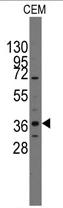 AP11396PU-N - PITX2