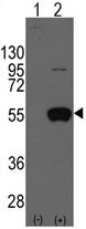 AP11400PU-N - ALDH2