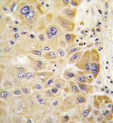 AP11401PU-N - ALDH2
