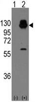 AP11403PU-N - Cadherin-13