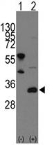 AP11407PU-N - FRAT1