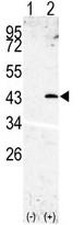 AP13339PU-N - SPPL3