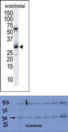 AP13345PU-N - Calcipressin-1