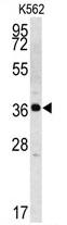 AP13358PU-N - KLK2 / Kallikrein-2