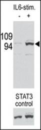 AP12717PU-N - STAT3