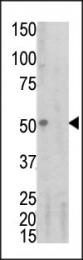 AP12726PU-N - CD120a / TNFR1