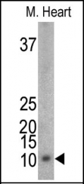 AP12737PU-N - Phospholemman