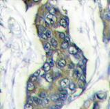 AP11418PU-N - Stanniocalcin 2 / STC2