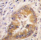AP11424PU-N - CDCA8 / Borealin
