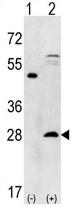 AP11427PU-N - PSMA5