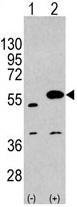AP11428PU-N - SPRED1