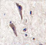 AP11430PU-N - SPRED1