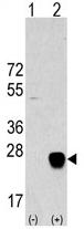 AP11438PU-N - METTL7A