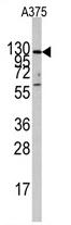 AP11440PU-N - Insulin-degrading enzyme