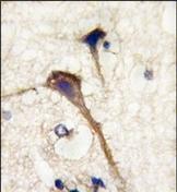 AP13281PU-N - Alpha-Internexin