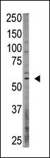 AP13203PU-N - CREB3L1 / OASIS