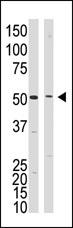 AP13205PU-N - Presenilin-1
