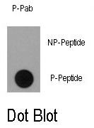 AP12877PU-N - RPS6KA1