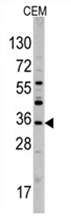 AP11444PU-N - Secretagogin (SCGN)