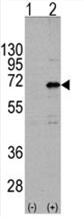 AP11451PU-N - CNOT4