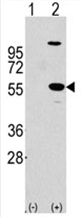 AP11456PU-N - ALDH1