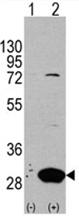 AP11459PU-N - Latexin
