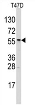 AP11461PU-N - ALDH6A1 / MMSDH